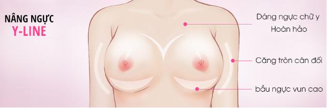 Bộ ngực đẹp theo chuẩn Y-line là mơ ước của nhiều chị em