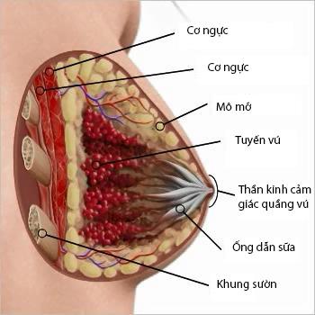 Vòng 1 như ý với phẫu thuật nâng ngực nội soi công nghệ Mỹ 4