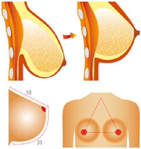 Hãy cải thiện ngực lép để trở nên tự tin và đẹp hơn 8